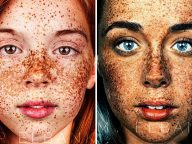 Photographer Creates Striking Portraits That Celebrate The Beauty Of Freckles