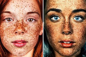 Beauty Of Freckled People Photo By Brock Elbank 21